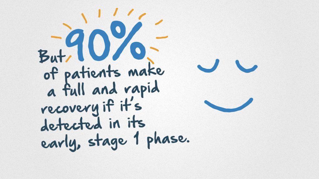 Digestive Cancers Europe animation 90%